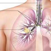 Waspada Kanker Paru-paru
