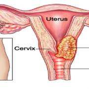 Info Lengkap Tentang Kanker Serviks